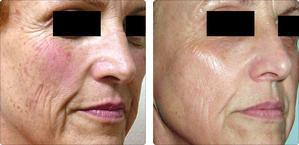 Intense Pulsed Light For Acne Rosacea Brown Spots Warrenton