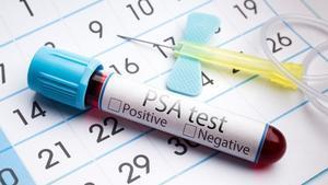 Prostate Cancer and Erectile Dysfunction SHockwave Treatment