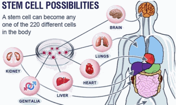 Stem Cell Can become many types of cells in the body - Stem Cell treatments Palm Beach Boca Raton