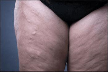 Venotonics pentru picioare varicose ce să ia și cum să corect