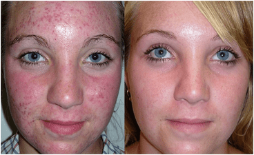 Teen treated with acne regime, microneedling and chemical peels.