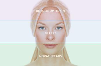 Nova Threads - non-surgical Face Lift