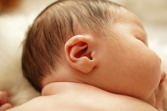 Otoplasty, hearing, shape, ears, children