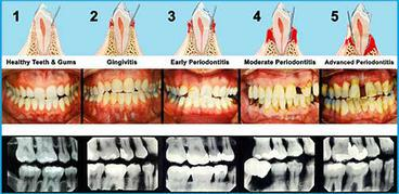 TYPES OF GUM DISEASE