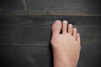 bunions, Next Steps Orthopedics