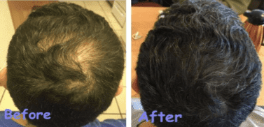 Male Pattern Hair Loss Non Surgical Hair Restoration