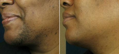 Laser Hair Removal Jabeen Fatima M D Family Medicine Physician