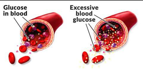 High  blood sugar damages blood vessels causing Erectile Dysfunction - Simply Men's Health ED Shockwave cure