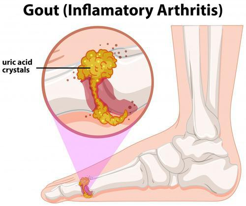 gout (inflamatory arthrits)