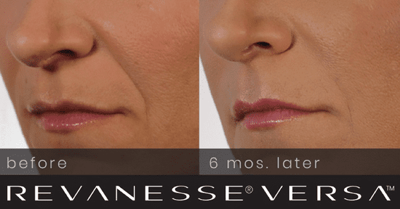 VERSA™ by Revanesse® - A Different Dermal Filler You Need to