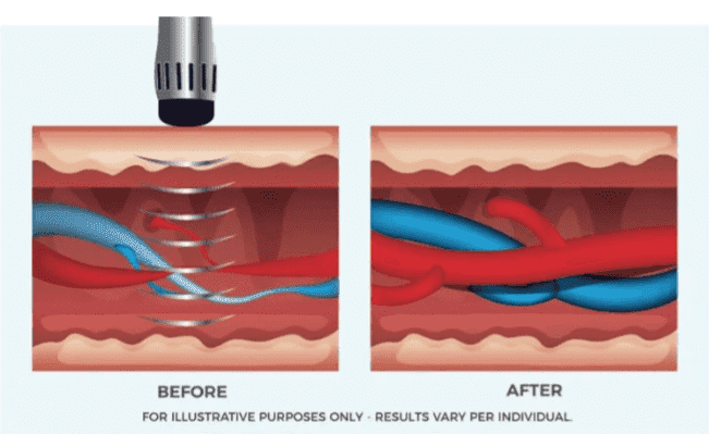 RejuvaWAVE shockwave ED therapy opens up blood vessels and restores blood flow curing ED