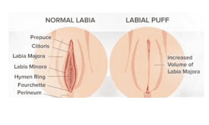 What is Labial Puff?: FemSculpt: Cosmetic Gynecology